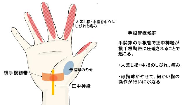 透析アミロイドーシスの症状