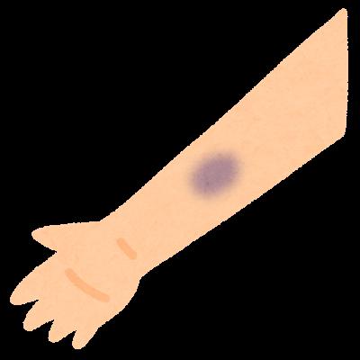 シャントの合併症の種類