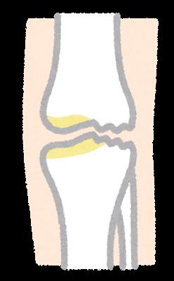 透析患者さんと膝の関係