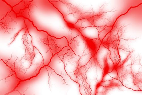 透析脳症とアルミニウム